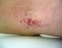 Dermatiti ed Eczemi
